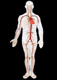 enfermedad arterial