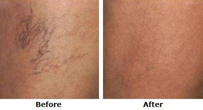 before and after sclerotherapy spider vein treatment