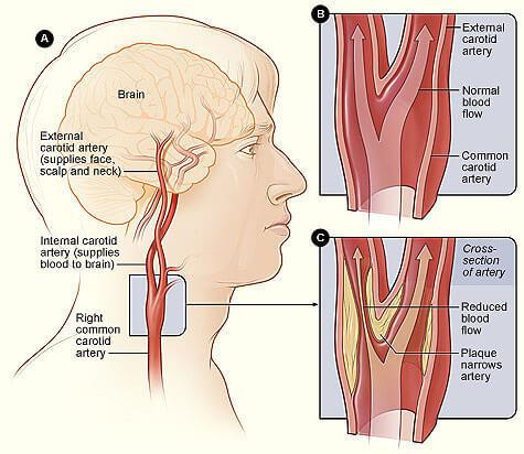 Carotid Artery Disease   Plaque   Stroke Symptoms   Vein ...