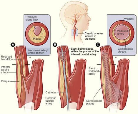 stent carotídeo