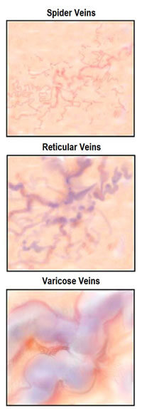 comparison of reticular veins to other diseased veins
