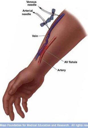 Dialysis access av fistula