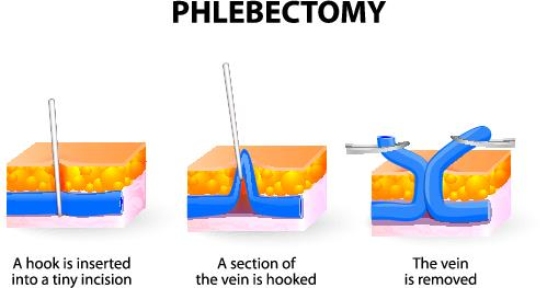 stab phlebectomy procedure for vein removal