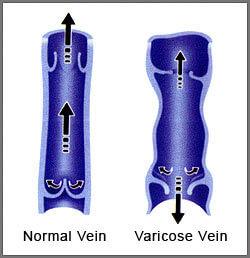 Varicose vein treatment - valves