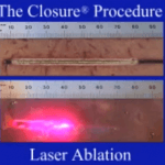 Endovenous Laser Therapy vs Radiofrequency Ablation (EVLT or EVLA vs RFA)