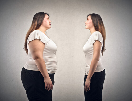 Does Obesity and Weight Affect Varicose Veins?