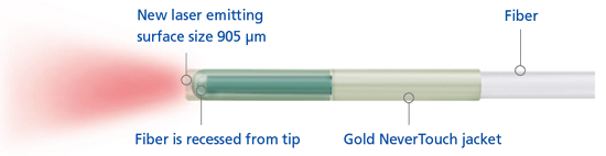 endovenous laser treatment or ablation